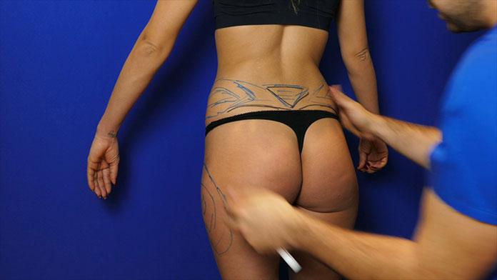 Liposukcja laserowa Katowice - wskazanie do wykonania zabiegu